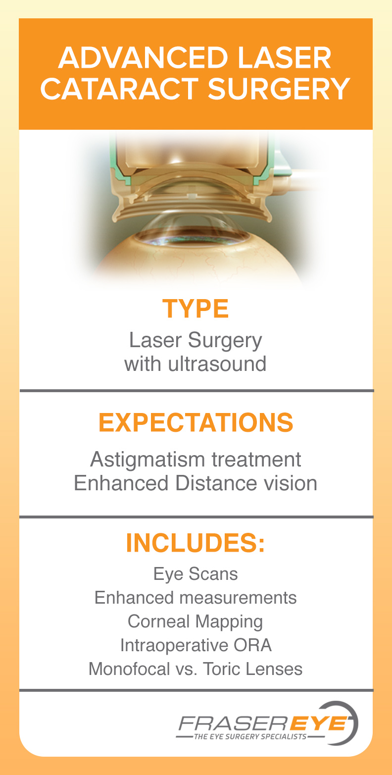 Advanced Laser Cataract surgery