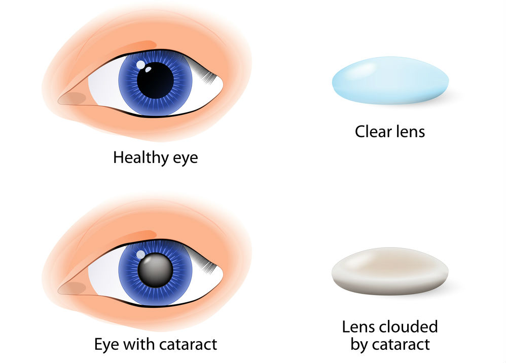 Eyes with and without Cataracts