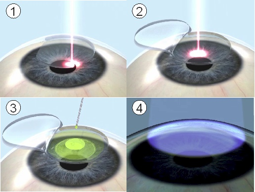 Corneal cross-linking treatment