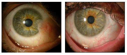 How is Pterygium Treated