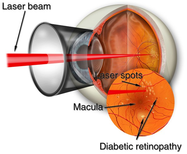 Treating Diabetic Retinopathy with surgery