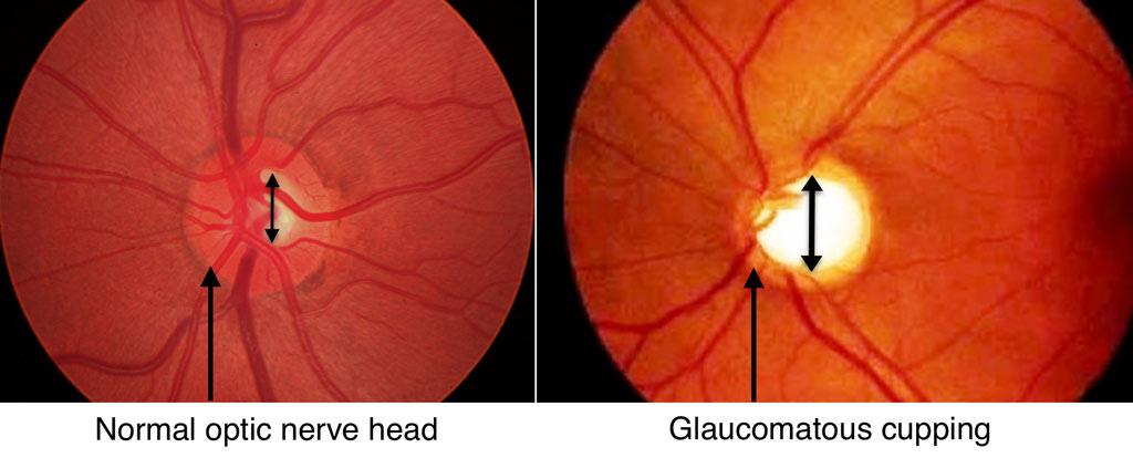 Optic nerve visualization