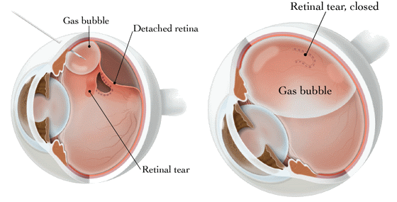 Treating Retinal Detachment with Pneumatic Retinopexy