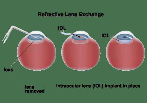 Refractive Lens Exchange