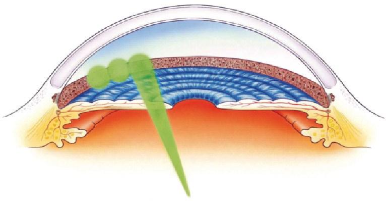 Selectivce Laser Trabeculoplasty (SLT)