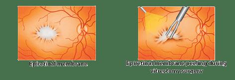 How to treat Epiretinal membranes