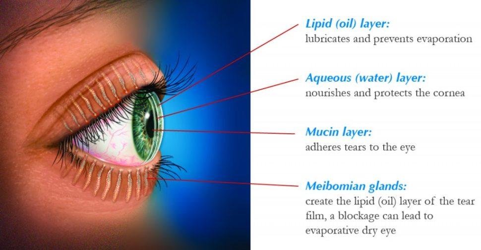 Detroit Chronic Dry Eye Symptoms And Solutions Fraser Eye