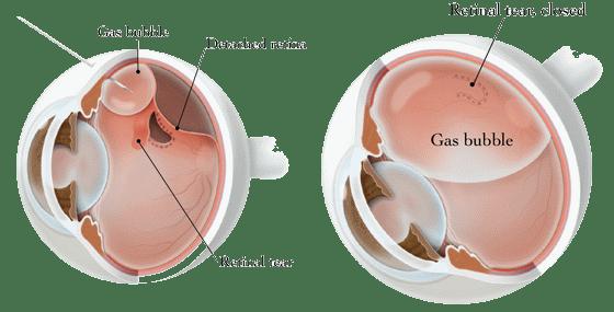 Pneumatic Retinopexy